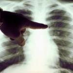 Διάγνωση του Καρκίνου Του Πνεύμονα