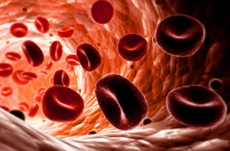 Αιμόπτυση