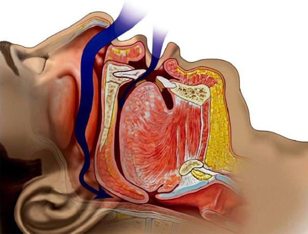 s-apnea
