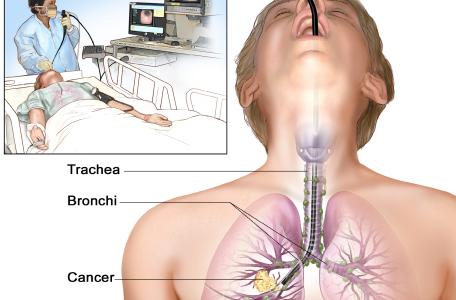 bronchoscopy 1