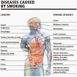 Αίτια του Καρκίνου Του Πνεύμονα